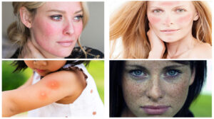 What are Some Effective Natural Remedies for the Severe Allergic Reaction From Blistering